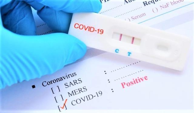 Bộ Y tế lên tiếng về giá xét nghiệm COVID-19